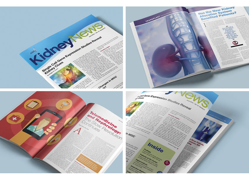 ASN Kidney News Magazine Redesign by Lisa Cain Design