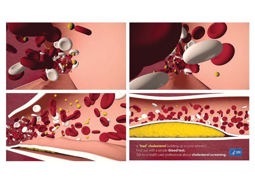 Palladian Partners Cholesterol Monster Motion Graphics