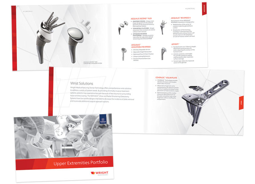 Wright Medical Group N.V. Upper Extremities Portfolio